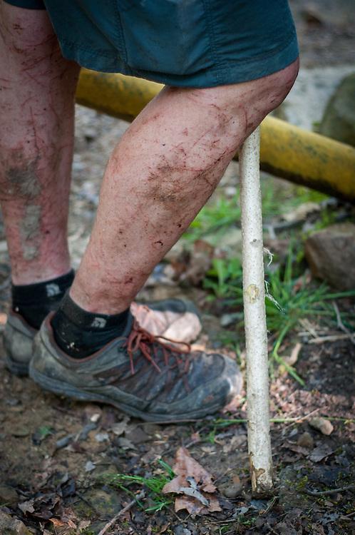 Legs, Loop 3 at the Barkley Marathons.