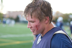 05 November 2007: North Carolina Tar Heels men's lacrosse Andrew Pyke has blood streaming from his face in a practice on Navy Field in Chapel Hill, NC.