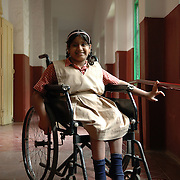 Deepthi (13) suffers from a spinal injury (Spin bifida)