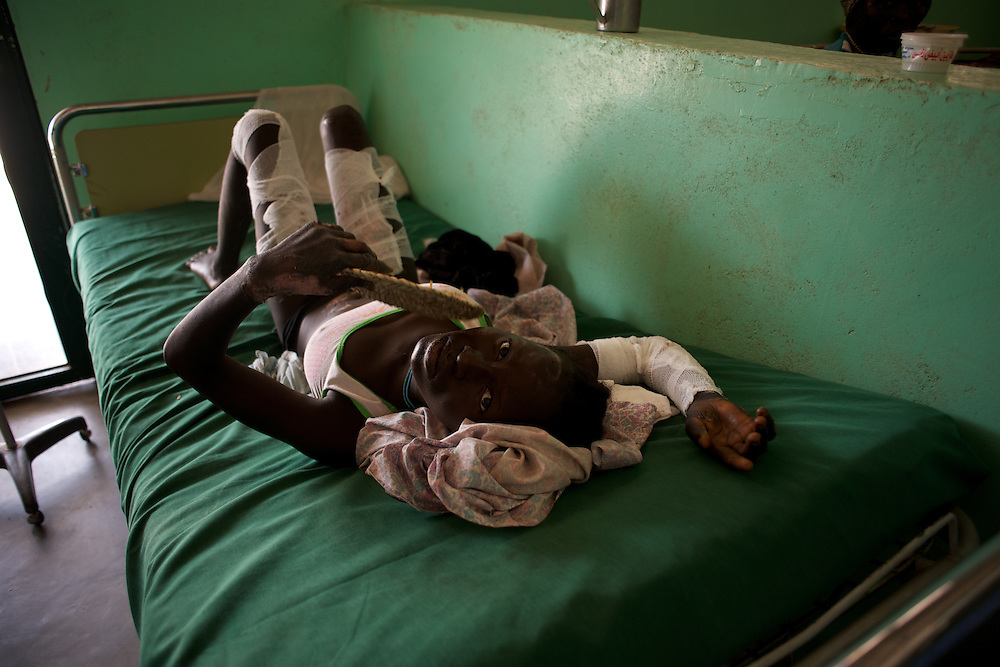 April 30, 2012 - Kauda, Nuba Mountains, South Kordofan, Sudan: A Nuba woman lays in a bed at Gidel Hospital, recovering from severe burns caused by bombardments by Sudan's Army warplanes in the village of Al Kanyard...Since the 6th of June 2011, the Sudan's Army Forces (SAF) initiated, under direct orders from President Bashir, an attack campaign against civil areas throughout the South Kordofan's province. Hundreds have been killed and many more injured...Local residents, of Nuba origin, have since lived in fear and the majority moved from their homes to caves in the nearby mountains. Others chose to find refuge in South Sudan, driven by the lack of food cause by the agriculture production halt due to the constant bombardments of rural areas. (Paulo Nunes dos Santos/Polaris)