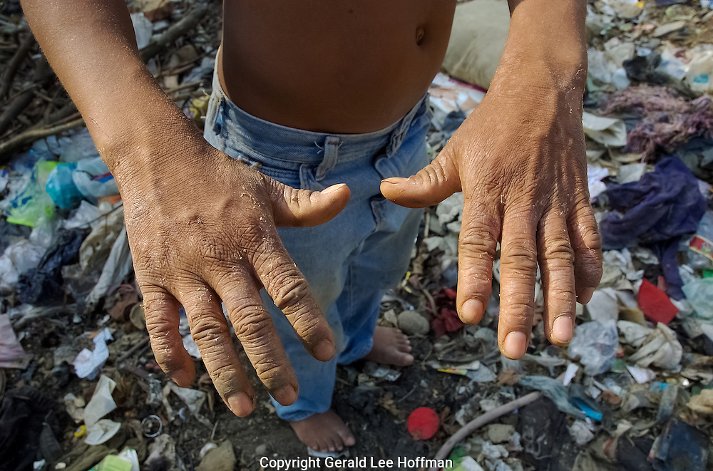 Hands Of A 10 Year Old trash diver at La Mosca. His hands are damaged and burned by the chemicals in the dump.