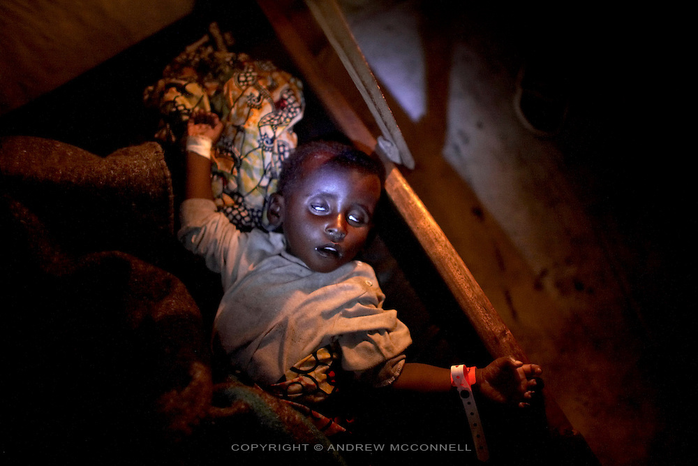 A young boy suffering from Cholera lies in the International Medical Corps treatment site having been just admitted, at Bulengo IDP site, Goma, DRC, on Wednesdqy, Feb. 6, 2008.