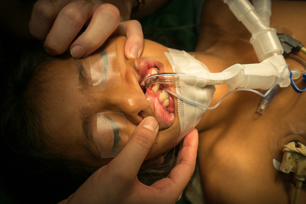 Maria Francis Aleman Guardado, 11, undergoes surgery for her cleft lip from Central American Medical Outreach volunteer plastic surgery team at Occidente Hospital in Santa Rosa de Copan, Honduras Feb. 20, 2017. Photo Ken Cedeno