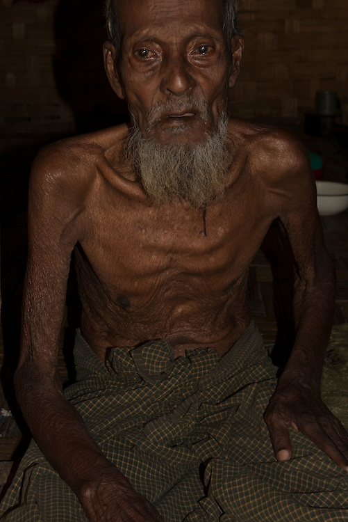 An elderly man at the Ohn Daw Gyi Camp near Sittwe. He suffers from malnutrition and asthma. 2015-02-05.