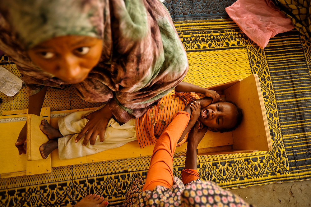 A nurse at a free clinic measures a local boy in Abougoudam, a village of Chadian Arab nomads. Abougoudam is in a remote area of Eastern Chad a several hours drive from Abeche.