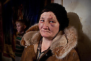 "A resettled woman from the exclusion zone around Chernobyl, in her home north west of Minsk where she bears the scars of ""walking into a tree branch"". Chernobyl's human costs are widespread affecting about seven million people.A generation later children are being born with birth defects ,heart problems and thyroid cancer.The crippled economy of Belarus has led to poverty, social problems and domestic abuse."