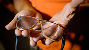 Tom Baldwin is legally blind, but can no longer afford to go to an optician or to get prescription glasses. He has repaired his old glasses many times over with superglue and duct tape. Stan Brock and the Remote Area Medical treat around 1000 patients during a 2 day session in Athens