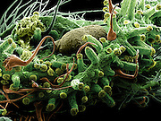 Scanning electron micrograph (SEM) of mature female Cannabis bud (Cannabis sativa) showing globular trichomes – the location of the highest concentration THC.  magnification x120 when printed 10 cm wide.