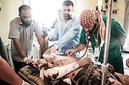 At a field hospital close to Al Dafniyah front line, dismayed doctor Hussam Maiteeg (left) watch being checked for a pulse dead rebel fighter Osama Fathi Ashor he desperately tried to resuscitate. Suffering from numerous wounds by a shell explosion, the 30 years old man dies minutes after he was brought to the medical post.  31 May 2011.