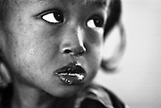 TEN 5 Jahre alt. Am Tag ihrer Ankunft in BAAN GERDA..Provinz Lop Buri, Thailand.TEN, age 5, the day she was brought to BAAN GERDA. She is HIV-positive and the infections are allready breaking out arround her lips and mouth( pharynx mycosis)..Province Lop Buri, Thailand........