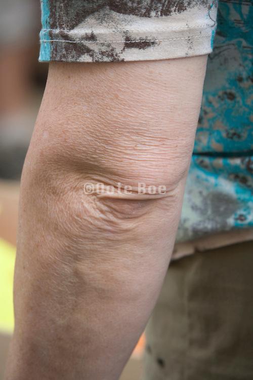 elbow of an elderly woman