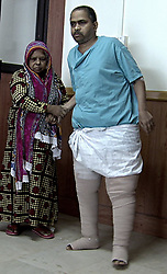 """EXCLUSIVE: Bed-ridden man walks again after 14 kg sac of swollen mass dangling from his thigh removed. NDIA,KOCHI, February 14, 2018 – Saidalavi, a 46-year-old man hailing from Kerala's Thrissur district, was bedridden for the last two years because of a humungous swollen mass hanging from his left thigh in a sac like structure that weighed a staggering 14 kg. He got afflicted with lymphatic filariasis (elephantiasis) three decades ago and underwent a couple of surgeries over the years, but to no avail – the swelling kept increasing. The patient could move with great difficulty with the help of his aged mother and two brothers. His family members ran pillar to post, but no doctor was ready to take up his case due to the sheer size of the swelling which gave his leg a grotesque appearance. It was a race against time as his swollen legs had begun to get infected. Saidalavi's life changed radically for the better a few days ago when a team of five surgeons and three anesthetists at Amrita Institute of Medical Sciences in Kochi removed the deformity in a surgery that lasted over five hours. Said Dr. Subramania Iyer, Head, Plastic & Reconstructive Surgery, Amrita Institute of Medical Sciences, Kochi: """"It was a complex surgery. Several complications could rise because of the patient being overweight and his inability to walk. First, we treated him for four weeks with intensive antibiotic therapy to control infection in his legs. Then, the challenge was to institute Comprehensive Decongestive Therapy (CDT) which plays a major role in preparing a lymphedema patient for surgical treatment. In Saidalavi's case, this went on for a month and involved Manual Lymphatic Drainage (MLD) and a special method of bandaging to make the legs softer by pushing the accumulated fluid to other parts of the body. The size of his swollen legs and immobility made this very difficult and needed at least four therapists instead of the usual one."""" Dr. Subramania Iyer added: """"Finall"""