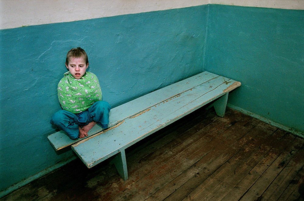 ©UKRAINE 2001. A girl wearing a straitjacket to prevent scratching. The orphanage lacks funding and the staff has no medical training, Zaluzhya..Picture featured in book KIDS photos by Markus Marcetic, published 2007.