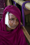 November 16, 2017. Momtaz Begum, a Rohingya woman, waits to receive aid at a food distribution centre at the Balukhali refugee camp in Cox's Bazar, Bangladesh. Her burns are the result of an attack by the Myanmar military who brutally rasped her, then locked her in her house and set fire to the roof. Escaping the burning building she found her husband and three sons killed and her daughter badly beaten and bleeding from machete wounds to her head. Photograph by David Dare Parker