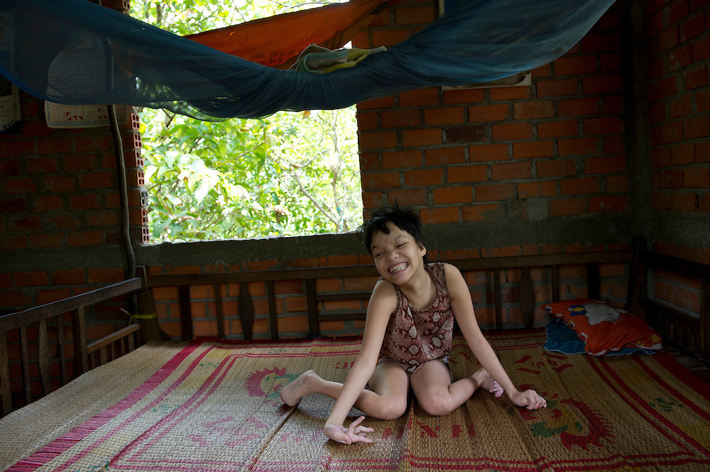 Tran Thu Vui  Mung (suffering from Dioxin poisoning) in the home she shares with her family in Song Phu Village, Ben Tre Provence, Vietnam.