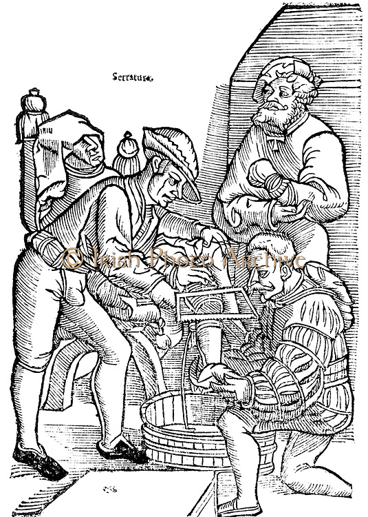 Amputation of leg without anaesthetic. Surgeon uses bow-saw to remove leg blow the knee while his assistant holds the foot.  In background a man with well-padded fist stands ready to render the patient unconscious.   From 'Veldt Boeck van den Chirugia Scheel-Hans' by Hans van Gersdorff (Amsterdam, 1593). llustration 1517. Woodcut.