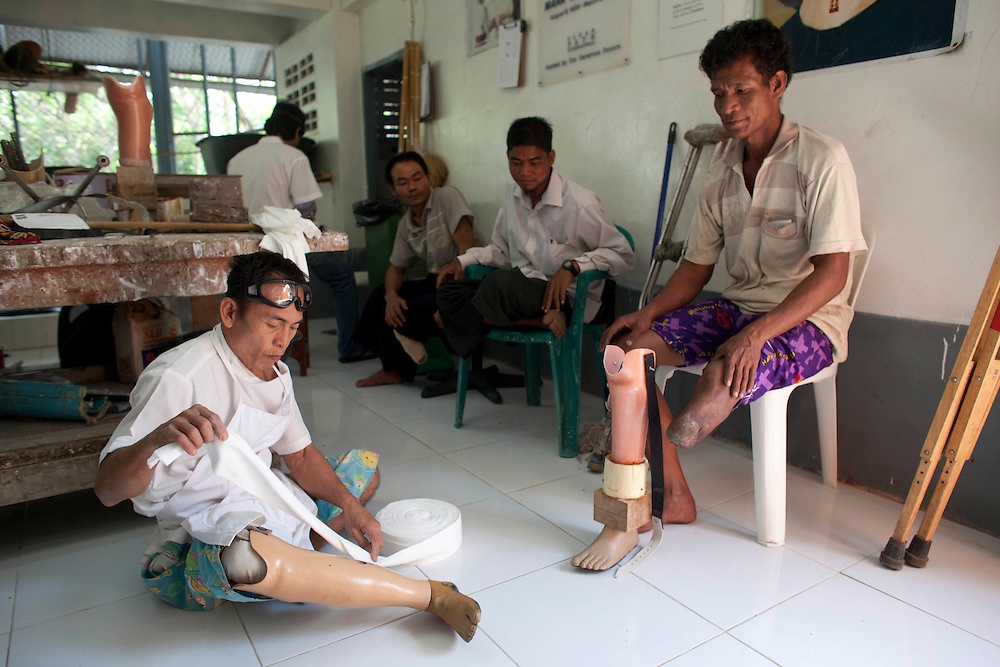 Agthan Kyi, a former soldier with the Democratic Karen Buddhist Army, right, is helped by technician Saw Man Shwe,  as he prepares to put on his new prosthetic limb at the Mae Tao clinic in Mae Sot, Thailand, Tuesday, Feb. 21, 2012.