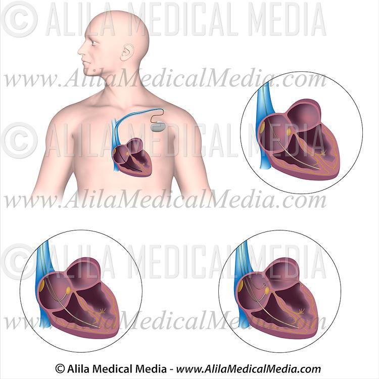 Pacemaker Implantation Alila Medical Images