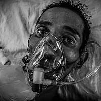 A black and white picture taken in 2010 shows the photographer's younger brother Mohammad Sani, in Malaysia. Mohammad Sani, 33, struggled with a cancer called 'germ cell tumor' (GCT) long before he knew it. He died 39 days after being diagnosed