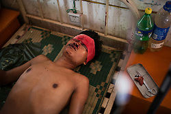 Laiza 20160915<br /> Lazum Htoi San, a K.I.A. rebell injured in a Burmese army shelling of Tsin Yu Bum, a mountain top with a frontline outpost, after getting emergency treatment at the army hospital in Laiza, Kachin State, Myanmar.<br /> Photo: Vilhelm Stokstad / Kontinent