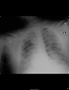Chest X-ray of a 17 year old male with Respiratory Distress Syndrome
