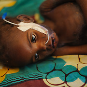 Two year-old Nasseyba Souley at a Save the Children stabilisation centre in Aguie in the Tessaoua region of Niger, where she is being treated for severe acute malnutrition and toxic shock. A day after our initial visit to Nasseyba, her pulse is undetectable, her breathing irregular, her extremities cold to the touch and her pupils are unresponsive. Despite her doctors' best efforts, it is clear that she is on the brink of death.
