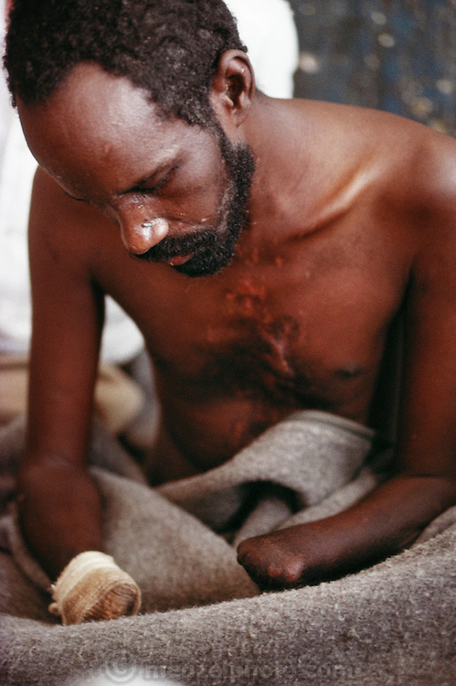 A landmine victim recovering in a hospital in Hargeisa, Somaliland. The three leading causes of death in Somalia are gastro-enteritis, T.B. and trauma, mostly from land mines, gun shots, and car accidents. Somaliland is the breakaway republic in northern Somalia that declared independence in 1991 after 50,000 died in civil war March 1992.