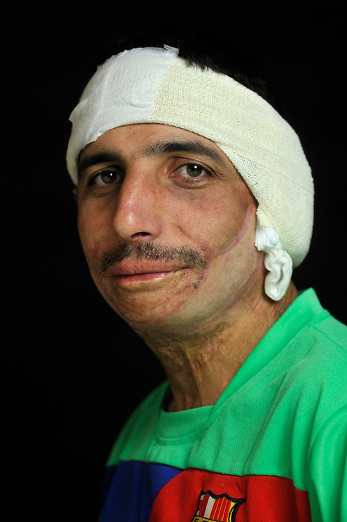 Waleed Azziz Mohammed, 26 years old, is from Dahouk in Iraqi Kurdistan. During fighting between Kurds and Saddam Hussein's forces his family's house was struck by a rocket and caught fire, burning his neck and face severely. .Amman, Jordan. 04/12/2011..Photo © J.B. Russell