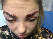 'I looked like a monster': Teen model burnt and swollen following eyebrow tint now faces permanent scarring<br /> <br /> These days it's no big deal for most young women to pop into a beauty salon for a quick treatment to keep up their polished appearance.<br /> But for Beautiful Harleigh Kay, 17, a drop-in salon appointment ended disaster when was rushed to hospital with burns and was unable to open her eyes after getting her eyebrows tinted.<br /> The parents of the young model are now campaigning for better safety regulations in the beauty industry after their daughter could be left permanently scarred.<br /> Harleigh was left in agony and her eyebrows were weeping with a pus-like substance following the beauty treatment at American Nails salon in Luton.<br /> At hospital, she had to be fed a cocktail of medication to combat the reaction. She was intravenously-fed steroids and antihistimines as well as a strong course of antibiotics.<br /> Harleigh, who studies hairdressing at Barnfield College, recounted her ordeal: 'I looked like a monster and it was hideous. I didn't recognise myself in the mirror and I was horrendous to look at. It left me feeling traumatised.<br /> 'The pain was excruciating and the discharge was weeping into my eyes. It felt like my whole face was on fire. I couldn't see properly and doctors told me I couldn't drive or do anything other than stay at home.'<br /> The teenager, who has modelled for MOT Berkshire since the age of four, said she popped into the salon for a quick treatment before meeting a friend.<br /> 'It's quite upsetting to think I could be left with scars. I just wanted to treat myself to a little treatment but instead it's been a disaster,' Harleigh explained.<br /> 'Modelling is something I've done whilst growing up and I love it. I'd like to continue to do it, but this could jeopardise it.'<br /> Harleigh, who is currently on a break from modelling to focus on her studies, came out of the shop looking a bit red, but by the following day her face had flared up and
