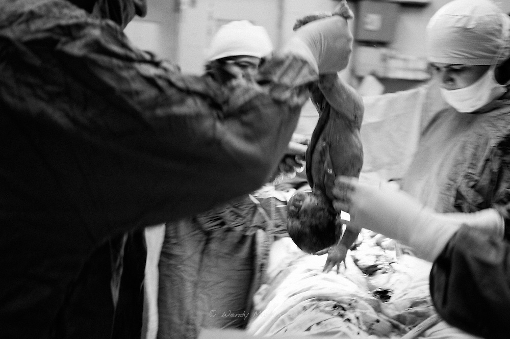 Dr. Musarat delivers Chanda's baby through a c-section. The baby is held up side down to and rushed out struggling to breath and in desperate need of oxygen. Karachi, Pakistan, 2010