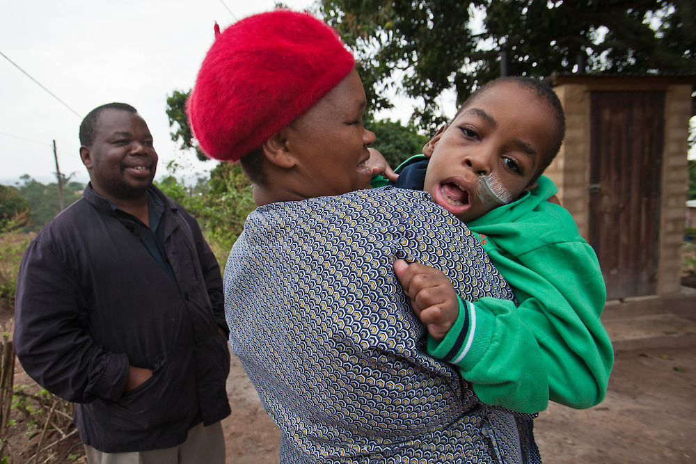 Clement, a South African boy, was born with Cerebral Palsy and lives at home with his parents.  His mother Sbongile is carrying him outside their home.  His father is watching and smiling.  Clement is dependent on a wheelchair for mobility and requires feeding and medication through the nasal tube. Durban, KaZulu Natal, South Africa.