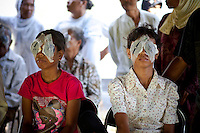 """June 2011 Cataract Operation in P. Sidempuan and Medan, Indonesia by SusilawatyThe Story of Maslia and Nurasni LubisMaslia Lubis 15 and her sister Nurasni 19 are from jalan Sibolga, Desa (village) Sipenggeng in Batang Toru, 26kms from Padang sidempuan in North Sumatra,They were bilateral blind, means blind in both eyes. Cause of their blindness is cataract, a disease curable by an eight-minute operation. Yet Maslia had been blind since she was 3, and Nurasni since 5.Maslia's poor vision was noticed by her parents when she a toddler, she could not find toys she was playing with after they were dropped.Even with her impaired vision, Maslia is determined to continue studying and is a smart student. She is in secondary 3 (SMP 3), and although she can't see or write, she can hear and speak. She managed to be ranked 3rd in her class on her academic results.But it is difficult for her to enjoy school activities. She can't participate in sports. And she can't go to school on her own. She needs school mates' help.Maslia was always hopeful to regain her sight and often asked her parents to take her to clinics. But all the clinics they'd been could not cure her.Her parents (Sari Alam and Mara Aman Lubis), who rely on farming income from a quarter hectare land to feed a family of 6, could not afford to keep on spending on experimental treatment.Whilst Maslia is a confident and hopeful young girl, Nurasni has become the opposite.Constant teasing by friends calling her """"blind girl"""" and inability to keep up with school her led to a low self-esteemed. Nurasni eventually dropped out of school after Primary 5 (SD 5). She had also somehow, accepting her fate. She never asked her parents to take her to clinics.Dr. Sanduk Ruit of Tilganga Institute of Ophthalmology - Nepal, operated both girls on The 16th June 2011 at the Military Hospital in Padang Sidempuan.Their vision was restored the very next day.Visiting the market and buying a purple dress are high on their to-do-list now that t"""