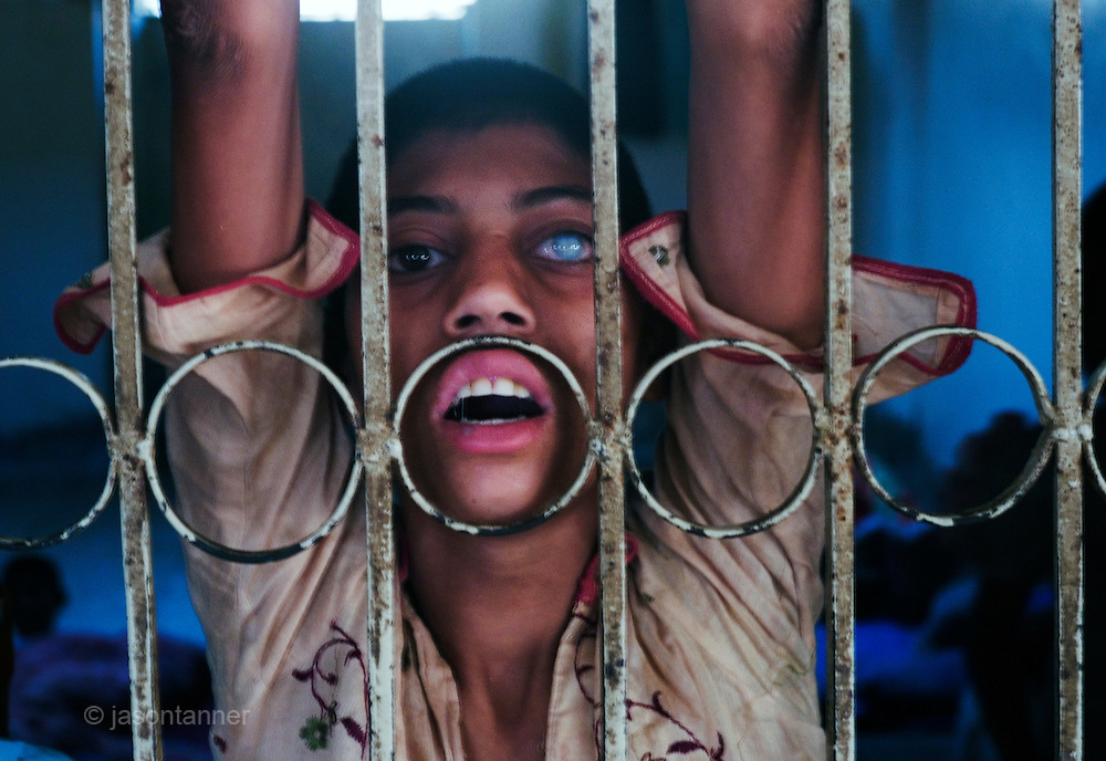 A young mentally ill patient with cataracts peers through the bars of her room at the Edhi Foundation Home for Women and Children in Karachi. The facility currently holds some 1600 women and 150 children with a staff of 25. No men are permitted to reside at the facility. Te shelter acts as a 'catch all' safety net giving those who are mentally or physically disabled as well as those who have no where else to go a refuge in a the absence of any state help. most children at the facility have been abandoned by their families, others were street children caught begging by the police and brought to the facility. Most people at the facility have nothing in the way of personal possessions, the clothes they wear are mostly donated. there are no education facilities on site and medical support is basic at best...The mentally disabled patients receive occasional consultant visits and whilst they are administered prescribed medicines to keep them manageable, no measures are taken to improve their condition or help them become independent in their daily routine..The Edhi facility is able to meet merely their survival needs of women and children. Some patients are visited by relatives, very few leave the facility unless there is a guarantee of care from a relative....In a country of some 160 million people, affordable medicines and diagnostic tests are beyond the reach of most people in Pakistan. The country suffers from shortage of doctors and government funded healthcare facilities; to many  on low income levels, basic health care is a luxury. The rich and middle class get the best treatment whilst the poor reply on the work of a welfare trust by the name Edhi Foundation. ..The Edhi foundation was established by Abdul Sattar Edhi. Born in a small Indian own of Bantva in the province of Gujrat he migrated to Pakistan during partition in 1947. After working as a commissioning agent selling cloth in a market in Karachi Abdul Sattar Edhi and other members of his community decided