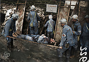 "Colorized photographs soldiers from the World War One<br /> <br /> With his impressive colorized photographs of the World War One, Frédéric Duriez gives us a new look at the conflict that ravaged the world between 1914 and 1918, revealing the difficult daily life of the French soldiers. <br /> <br /> Photo Shows: ""Slope Southeast - Shelter MF3 - Arrival of a wounded to the aid station.<br /> ©Frédéric Duriez/Exclusivepix Media"