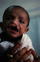 Maiwand Hospital - Plastic Surgery Unit.A baby born with a cleft palate