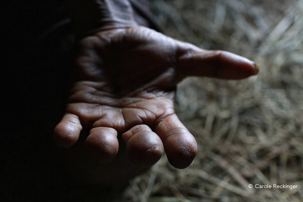 A woman's disfigured hands tell a long history of loss. Traditionally Dani women amputate a finger every time a close member of the family passes away. Due to a lack of awareness, poor health services, stigma and misinformation, the number of undetected HIV cases is thought to be many times higher than the 2700 detected HIV cases in Wamena (Jan2013).<br />