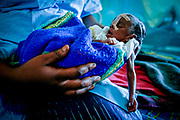 Severely undernourished Isra (25 days old) at a hospital run by Médecins Sans Frontières in a camp for Darfur refugees in Iriba, close to the Sudan border. The genocide in Darfur with its ethnic cleansing is also a direct result of climate change. Farmers and herders are pitted against each other over diminishing  pasture and resources. The barren land is taken over by the Sahara desert, which has expanded 60 miles over the last 40 years. Rainfall is down by 16-30 percent. Crops are failing. With further global warming, conflicts like Darfur are likely to be repeated on even larger scale.