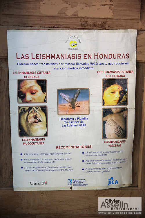 Poster with information about Leishmaniasis at the health center in El Carbon, Honduras on Thursday April 25, 2013.