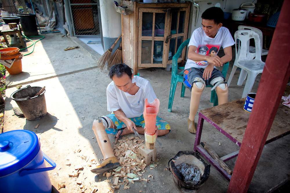 Technician Saw Man Shwe hand crafts a  prosthetic limb as double amputee That Nge Lay looks on at the Mae Tao clinic in Mae Sot, Thailand, Tuesday, Feb. 21, 2012.
