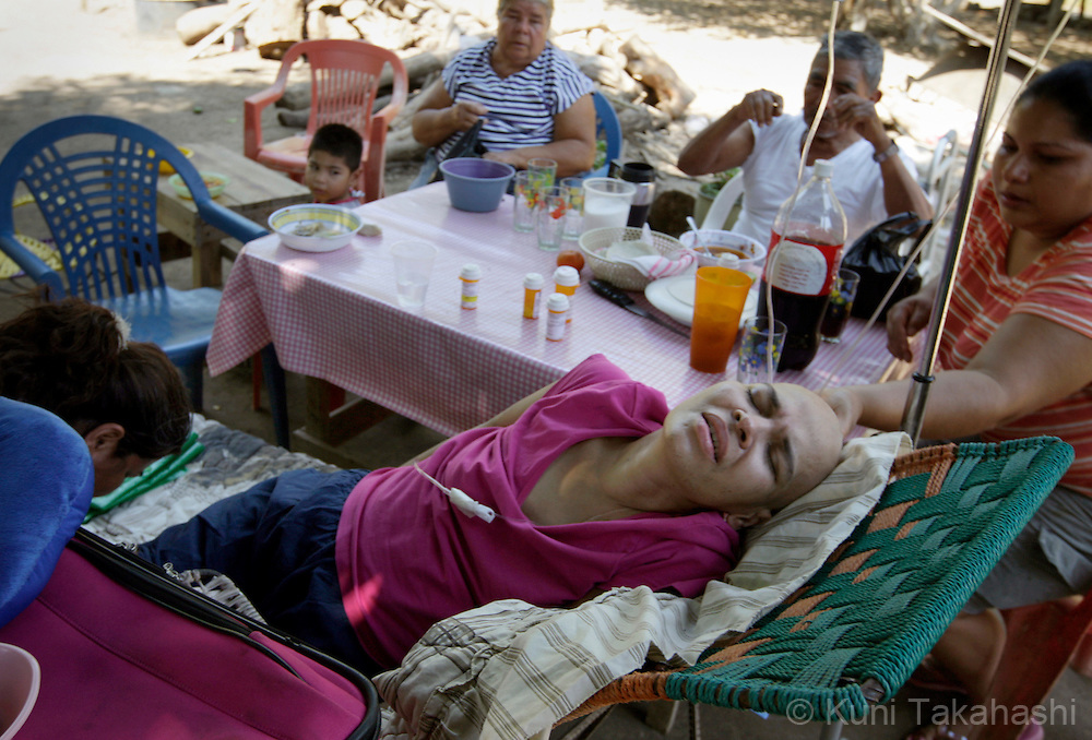 Mariana de la Torre, 29, struggles with pain at her house in Apatzingan, Mexico on Feb 26, 2009.<br /> (Photo by Kuni Takahashi)