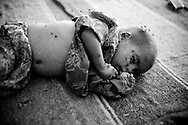 A youngborn baby with a bad skin infection sleeps covered in flies in Pepri camp housing hundreds of flood affected families. Depsite advice from the medical staff present, people often still don't listen or know how to keep their children clean and healthy. Karachi, Pakistan, 2010