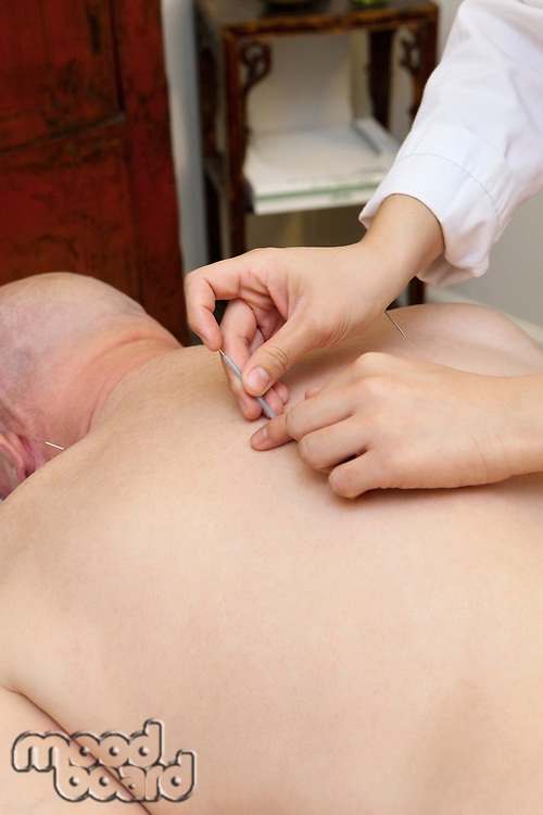 Close-up of female acupuncturist putting needle in senior man's back