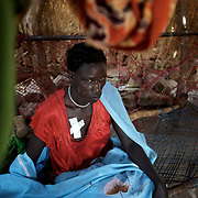 A Nuba woman recovers from shrapnel injuries in a improvised field clinic near Tabania village in South Kordofan's Nuba Mountains in Sudan.
