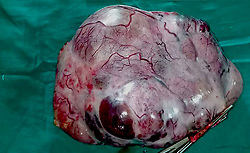 July 26, 2017 - Ahmedabad, Gujarat, India - Released Today: Photo day July 6, 2017 - Picture of the rare football sized ovarian tumour removed from an eleven-year-old girl at Sheth LG Hospital in Ahmedabad in Gujarat, India..The girl complained of abdominal pain and swelling, doctors suspected it to be a malignant tumour and following a thorough study and diagnosis they decided to surgically remove the tumour.....A team of doctors successfully removed the 2.5kg (5.5lbs) cancerous ovarian tumour in a two hour long operation. (Credit Image: © Cover Asia Press/Cover Asia via ZUMA Press)