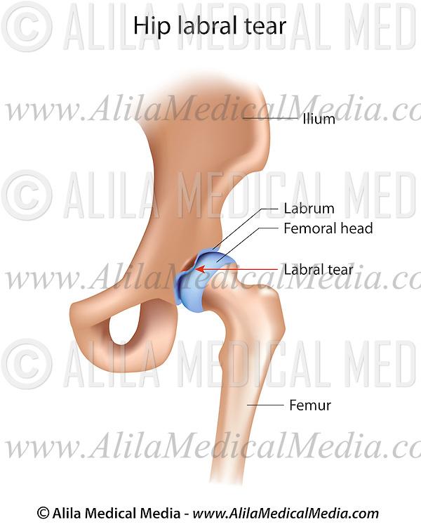 Hip Labral Tear Alila Medical Images