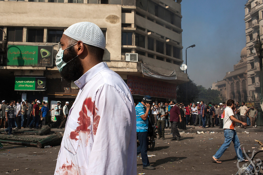 "A bloodied supporter of deposed Egyptian President Mohamed Morsi watches nearby frontline street clashes around Ramsis square during the August 16, 2014 ""Day of Rage"" protests in Cairo, Egypt."