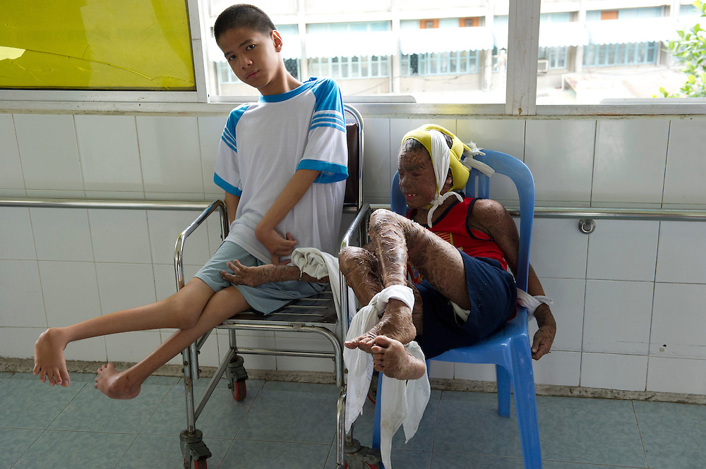 Tran Minh Anh (right) with friend, born 14/10/1994, long-term patient at the Peace Village in the Tu Du (Freedom) Obstetrics and Gynaecology Hospital in Ho Chi Minh City, Vietnam