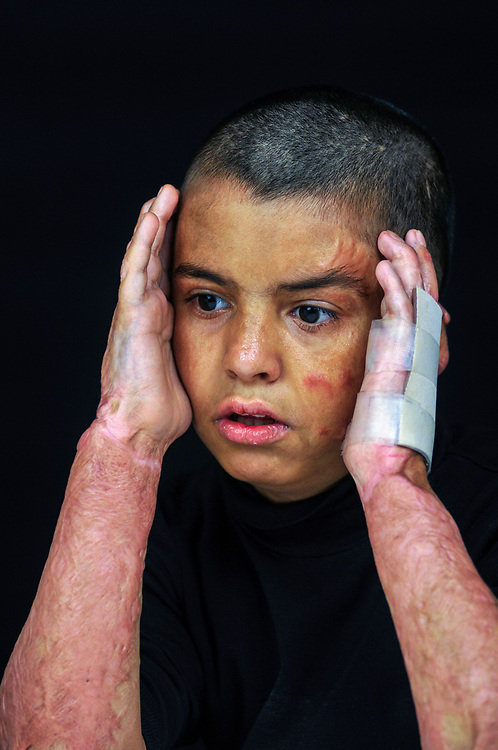 Hasin Jassim Mohamed, 12 years old, from Baghdad, was severely burned on his face in 2010 while riding in a car on a family outing to visit an uncle when a car bomb exploded nearby. <br /> Amman, Jordan. 01/12/2011.