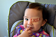 What a good eye-dea! Dad draws different cartoon characters on daughter's eye-patch every day to make her recovery from cataract fun <br /> <br /> A devoted Dad has turned his daughter's boring old eye-patches into something far cuter. <br /> Geof Grubb's 18-month-old daughter Layla was born with a cataract in her right eye and has to wear a patch over her left one to strengthen the poor eye.<br /> Little Layla must put a patch on for two hours a day until she's four to and it is hoped it will stop her from needing to have surgery.<br /> <br /> Geof, who lives in Illinois, draws a new patch every day and has gathered hundreds of followers online but says he isn't worried about running out of ideas.<br /> 'We bought her some plain patches and I thought they were a little depressing. This was my way of making it fun,' he said.<br /> <br /> 'Layla doesn't really see them much because she's wearing them. She's happiest when she gets to take it off. I really like the Calvin and Hobbes patch personally because it reminds me of my childhood.'<br /> His designs, which have included Yoda, characters from The Simpsons and Star Wars, each take between 10 and 20 minutes to drawer.<br /> 'I have a running list of ideas that my wife and family helps me with. Sometimes I think I'm out of ideas but I always find inspiration somewhere. There's a ton of pop culture out there.'<br /> The stay at home dad has managed to post 105 images on Instagram and gathered over 1,600 followers. <br /> Layla was born with the cataract which does not need to be removed as her vision is expected to develop normally, using the patches instead.<br /> ©Exclusivepix Media