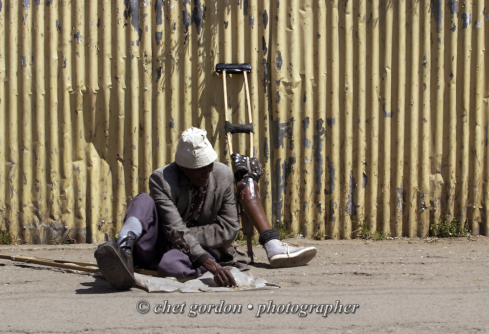 Ethiopian man with his prosthetic leg removed begs on the street in downtown Addis Ababa, Ethiopia on December 6, 2005.
